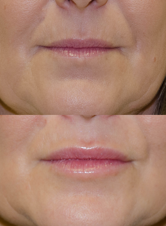 Lip Enhancement Bromley