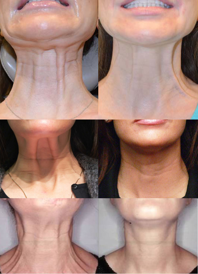 Neck Ageing Treatment Bromley