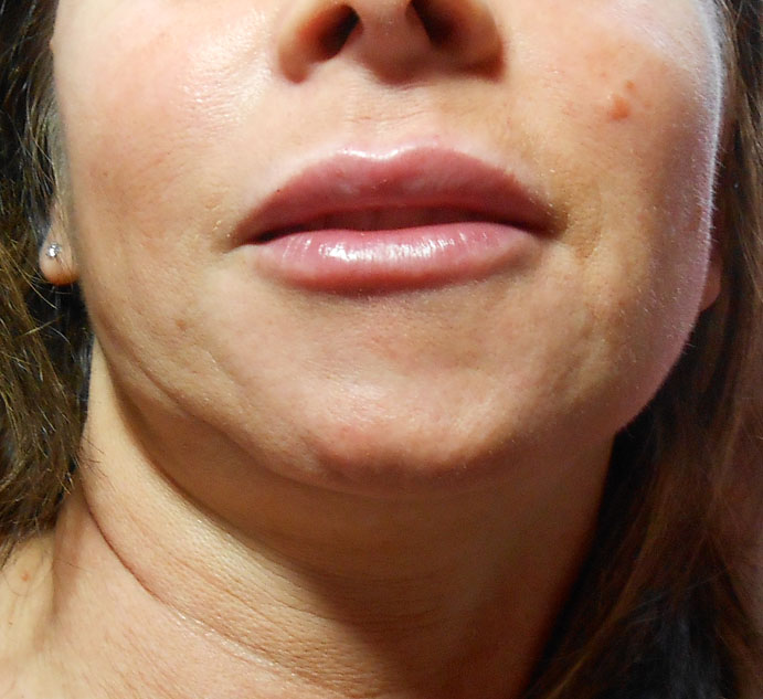After Lip Filler Using Juvederm