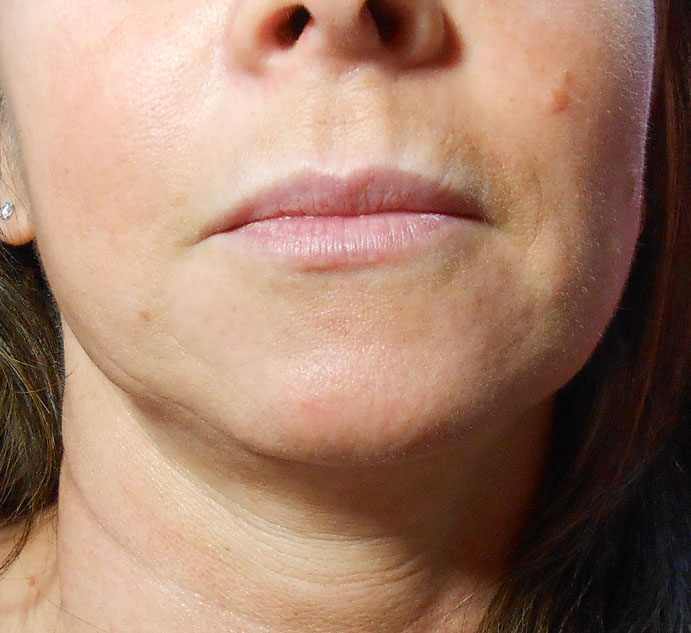 Before Lip Filler Using Juvederm